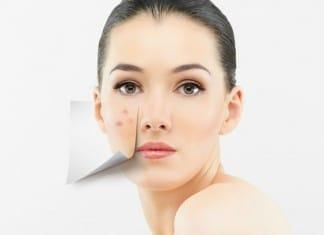 Como eliminar Espinhas Naturalmente e ter uma pele linda
