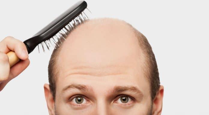 acabar com queda de cabelo