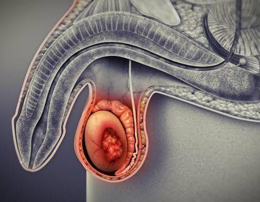 Câncer nos testículos