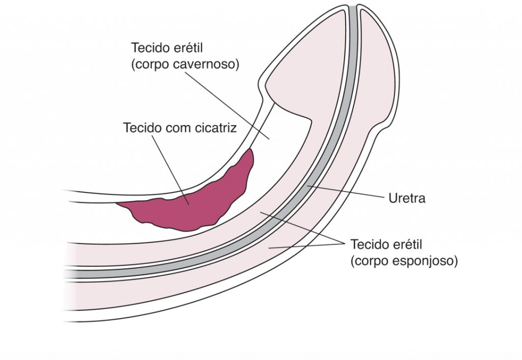 Doença de Peyronie - imagem reprodução internet