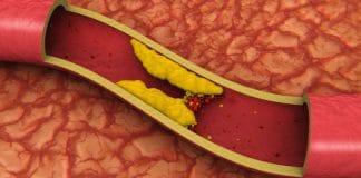 colesterol LDL