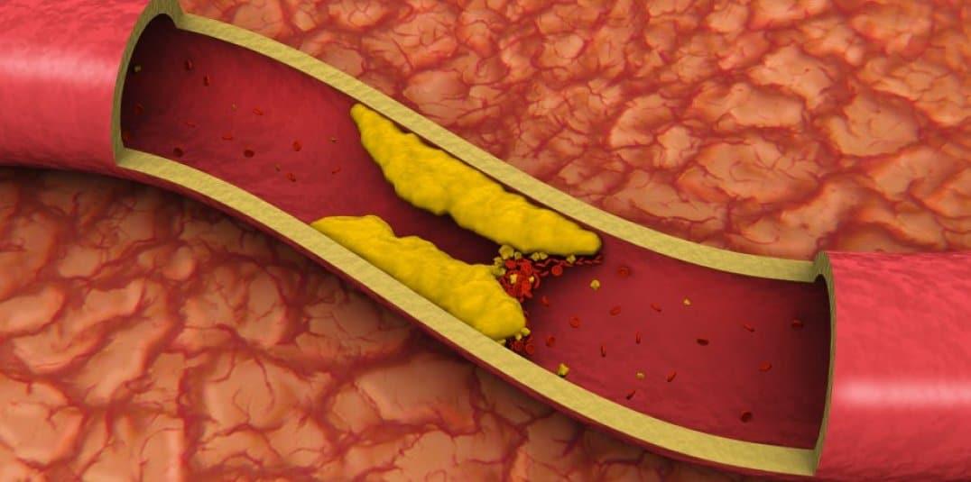 Dieta rica em açúcar aumenta o colesterol ruim