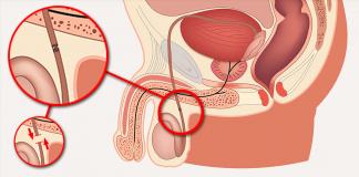Reversão vasectomia - reprodução internet