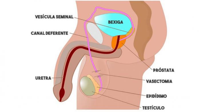 O que é e como é feita a vasectomia - por Dr. Glauco Guedes