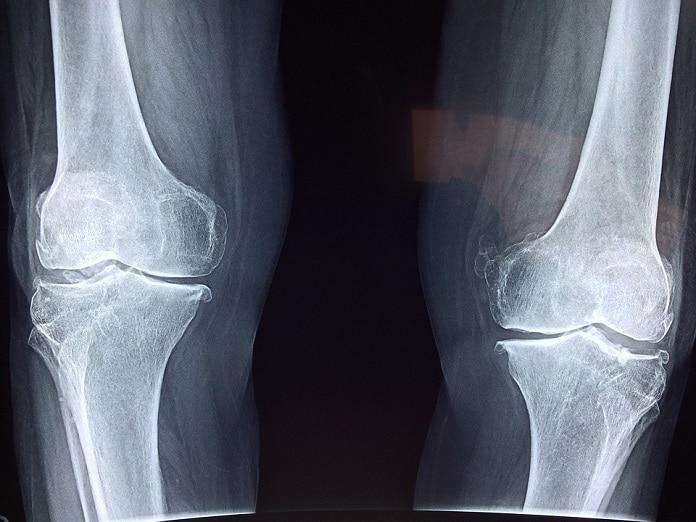 raio X joelho - saúde óssea